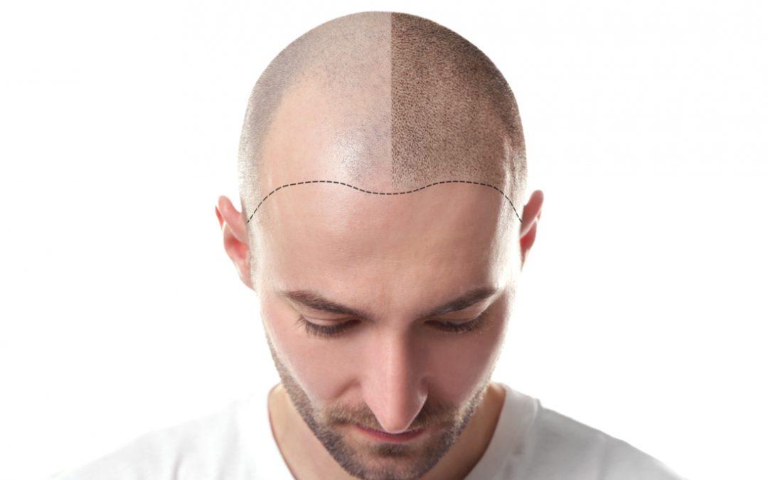 La caida de cabello, Alopecia
