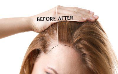 Alopecia por falta de estrógenos